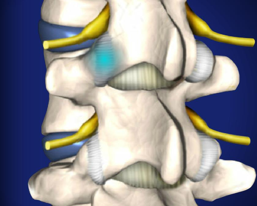 Facet Joint Injections Image