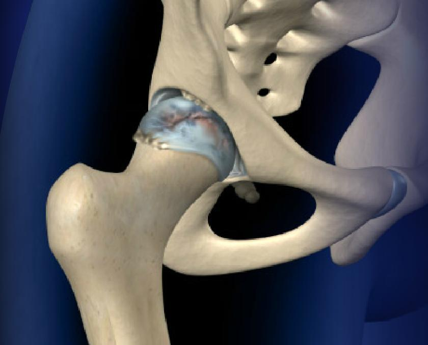 Fluoroscopically-Guided Hip Injection Image