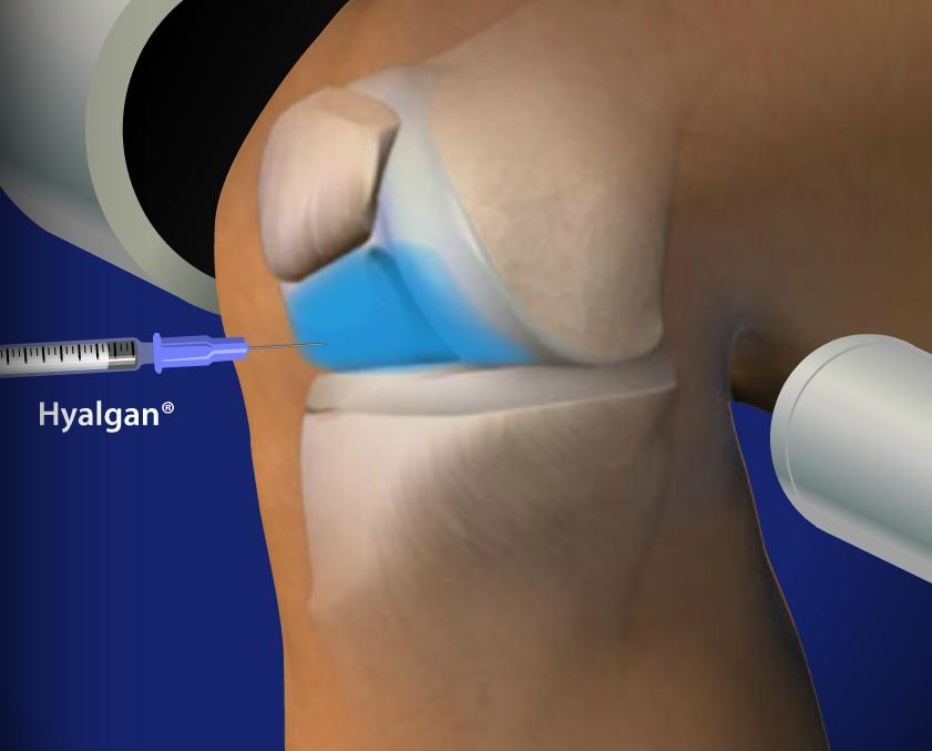 Fluoroscopic Guided Hyalgan® Injection for Knee Pain Image