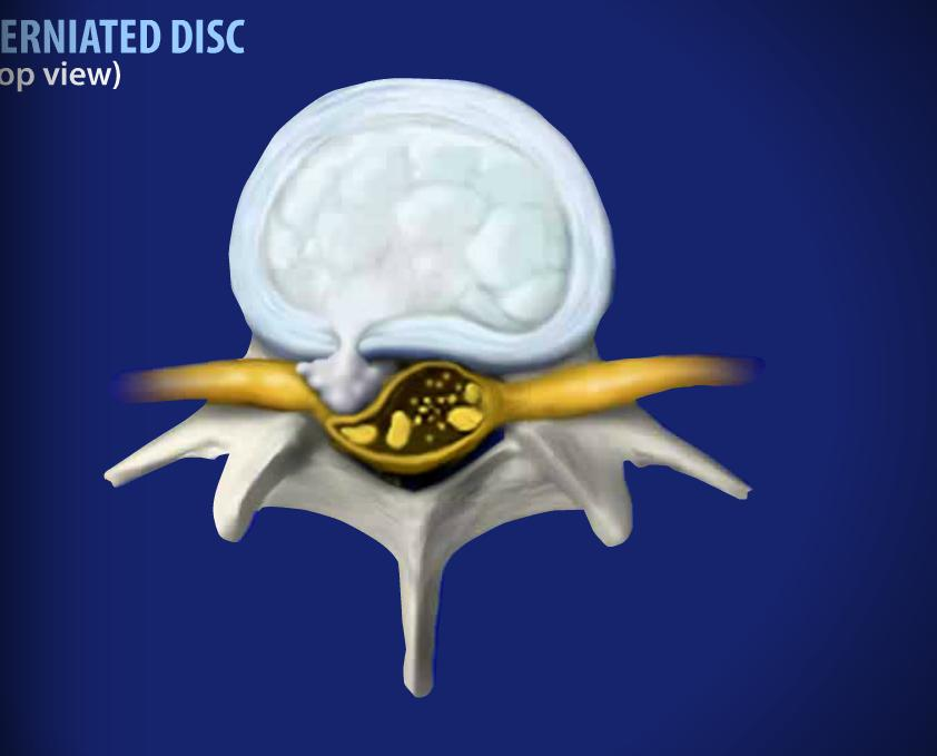 Herniated Disc Image