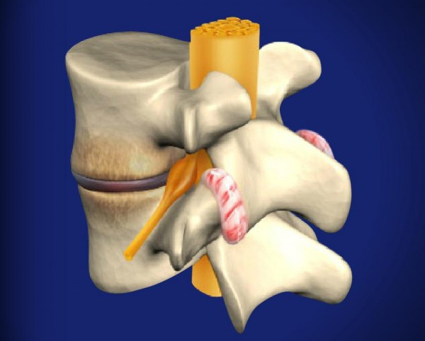 physiotherapy treatment of retrolisthesis