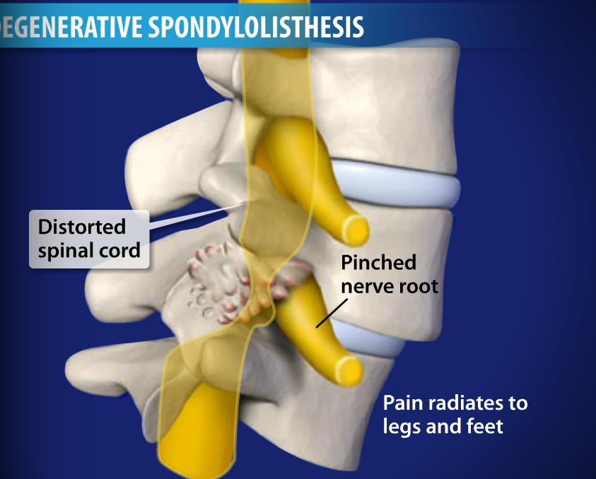 what is degenerative listhesis