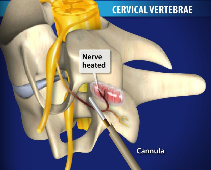 Radiofrequency Neurotomy of the Cervical Facets Image